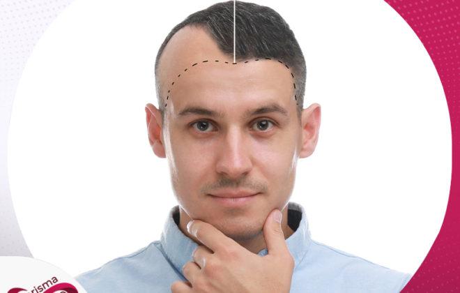 عيادات مصر التخصصية لزراعة الشعر