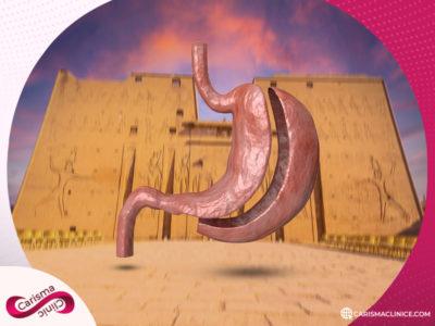 عملية تكميم المعدة في مصر